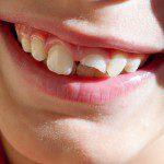 Vallen en tand breken