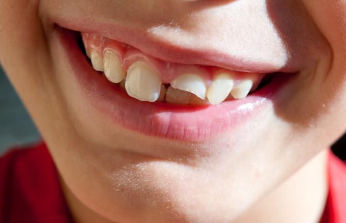 drdavidgeier.com/steps-tooth-knocked-out